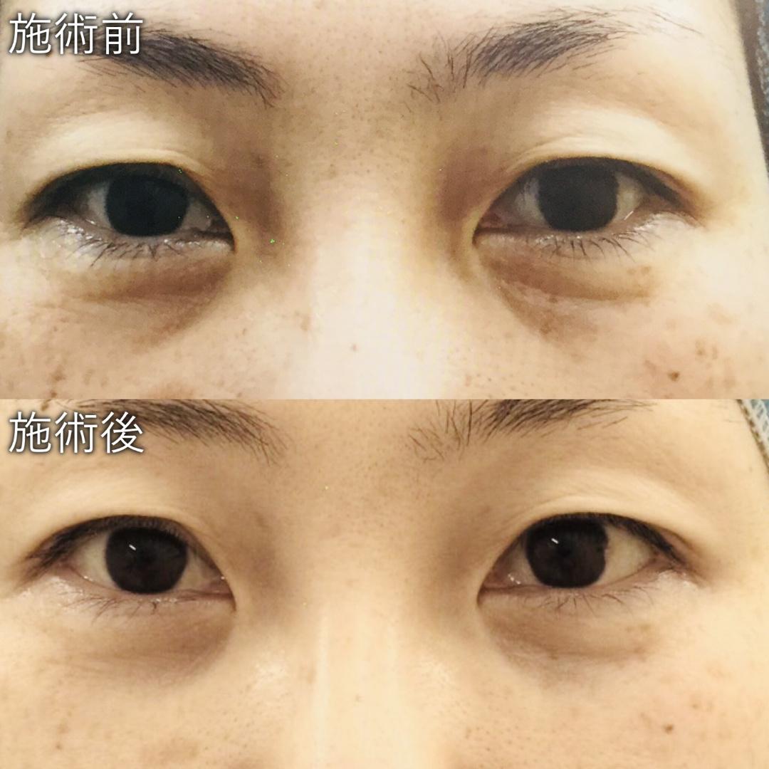 経結膜脱脂術による目の下くま治療症例